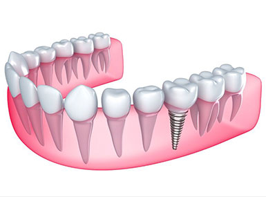 $2798 Dental Implant Surgery Special