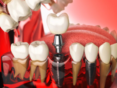 replacing missing teeth